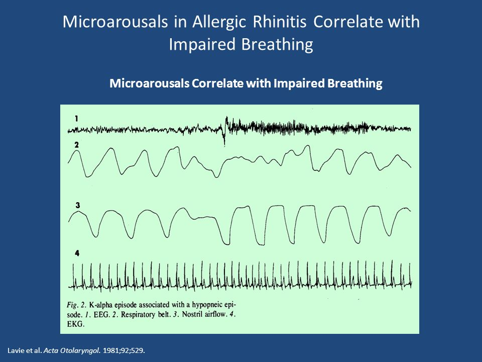 Lavie et al. Acta Otolaryngol. 1981;92;529. Microarousals Correlate with Impaired Breathing Microarousals in Allergic Rhinitis Correlate with Impaired