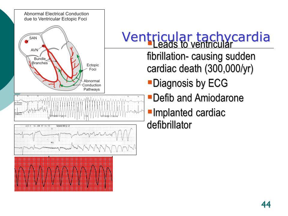 44 Ventricular tachycardia Leads to ventricular fibrillation- causing sudden cardiac death (300,000/yr) Leads to ventricular fibrillation- causing sud