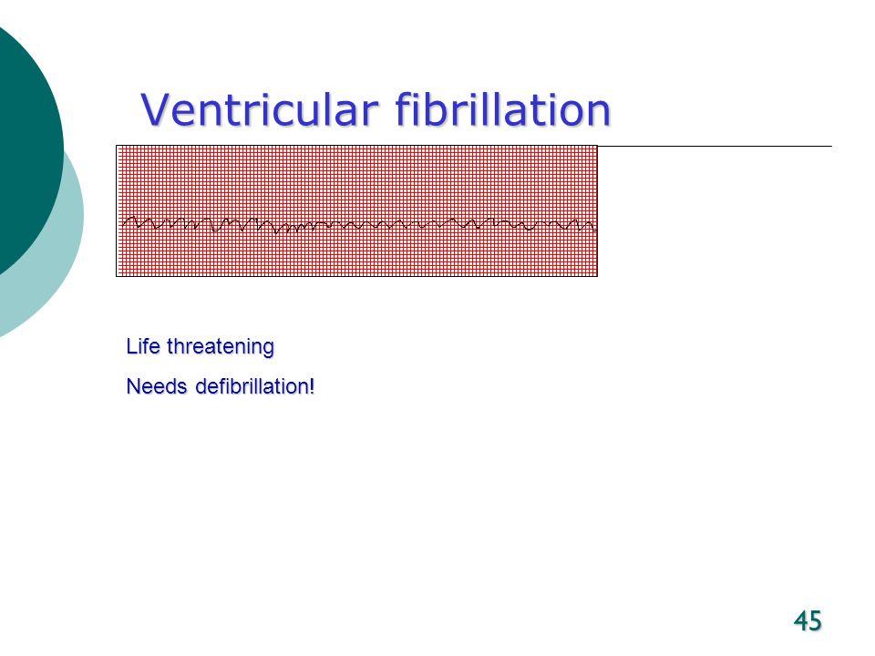 45 Ventricular fibrillation Life threatening Needs defibrillation!