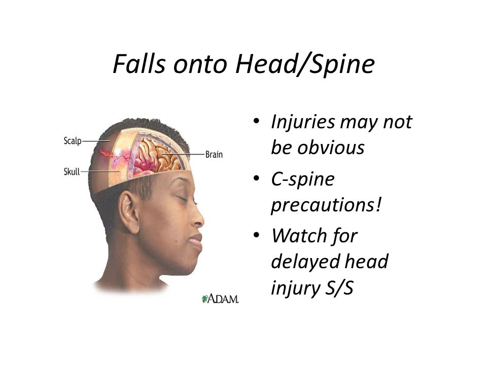 Falls onto Head/Spine Injuries may not be obvious C-spine precautions! Watch for delayed head injury S/S