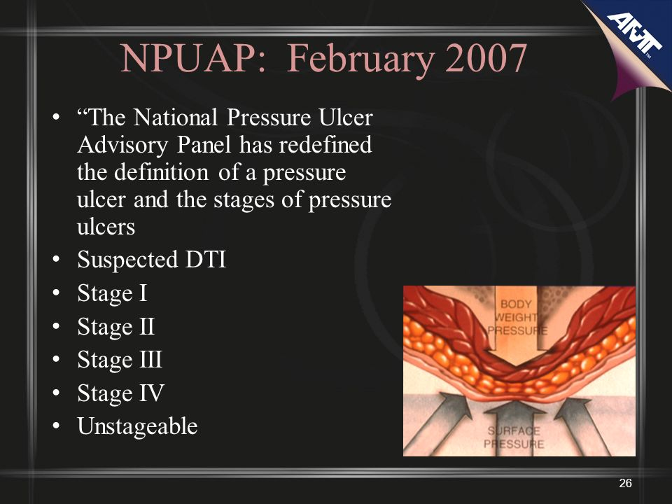 26 NPUAP: February 2007 The National Pressure Ulcer Advisory Panel has redefined the definition of a pressure ulcer and the stages of pressure ulcers Suspected DTI Stage I Stage II Stage III Stage IV Unstageable