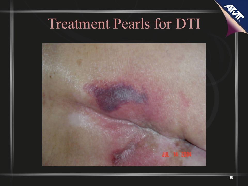 Treatment Pearls for DTI 30