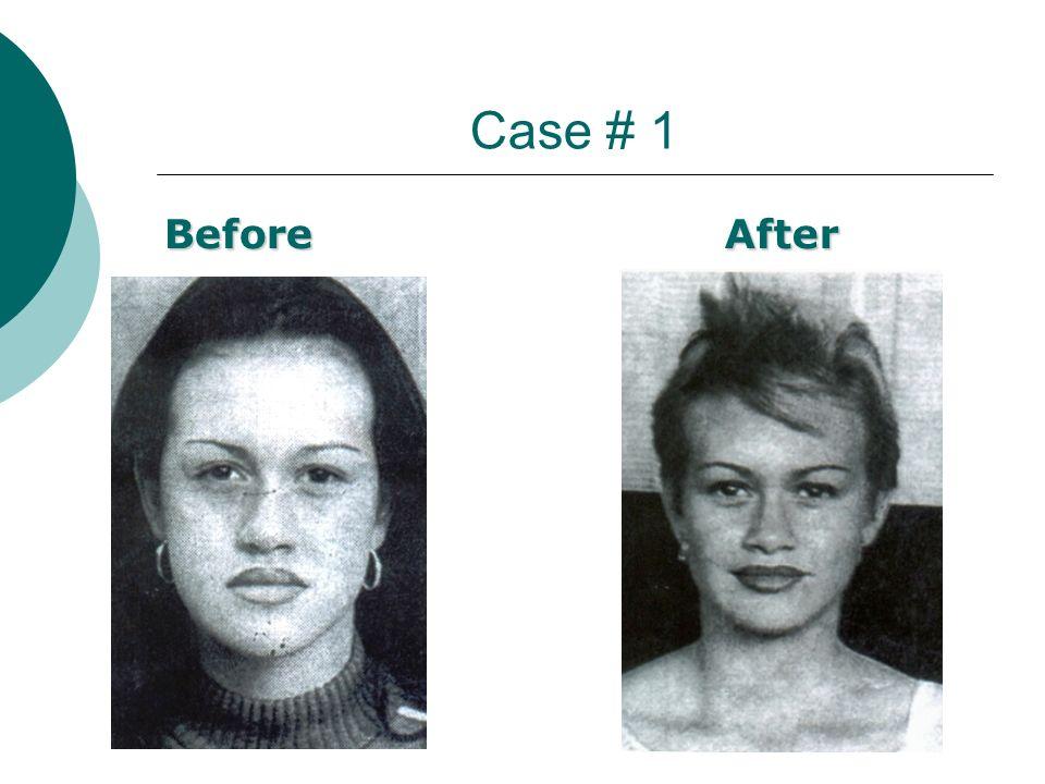 Case # 1 BeforeAfter