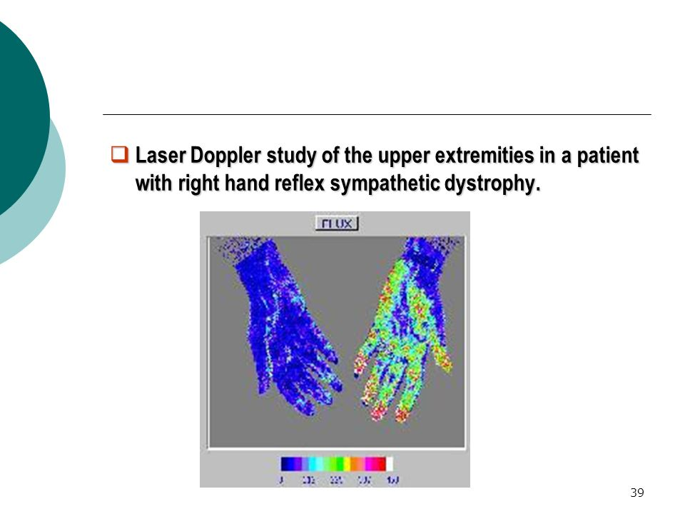 39 Laser Doppler study of the upper extremities in a patient with right hand reflex sympathetic dystrophy.