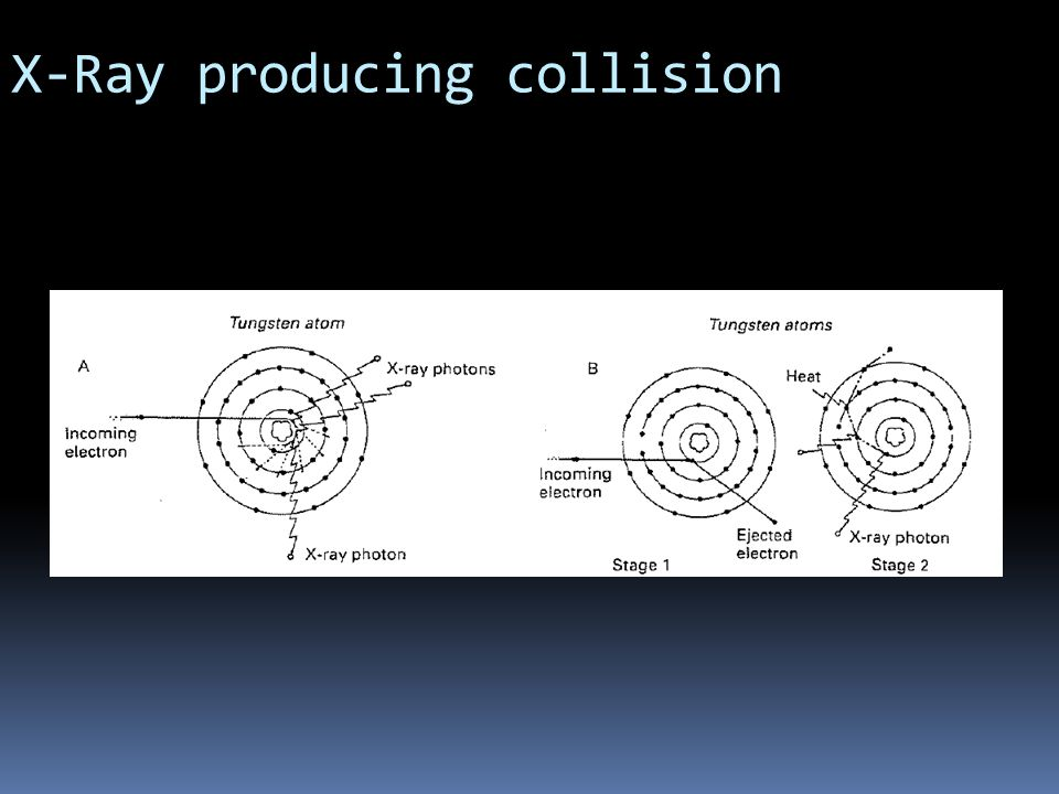 X-Ray producing collision