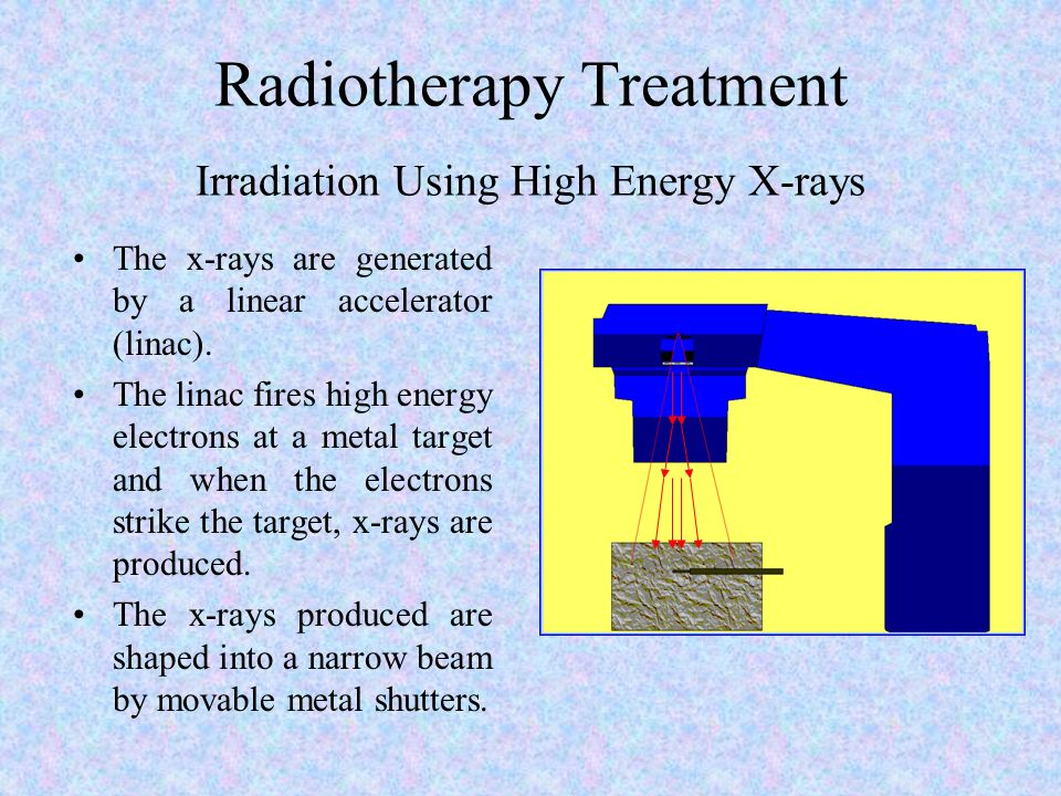 Radiotherapy Treatment Irradiation Using High Energy X-rays The x-rays are generated by a linear accelerator (linac). The linac fires high energy elec