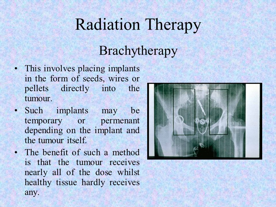 Radiation Therapy Brachytherapy This involves placing implants in the form of seeds, wires or pellets directly into the tumour. Such implants may be t