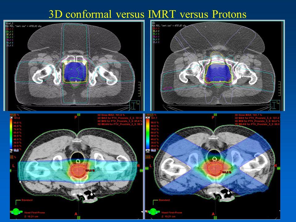 3D conformal versus IMRT versus Protons