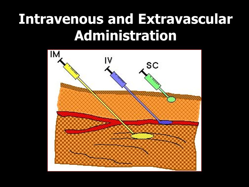 14 Intravenous and Extravascular Administration IV, IM, SC