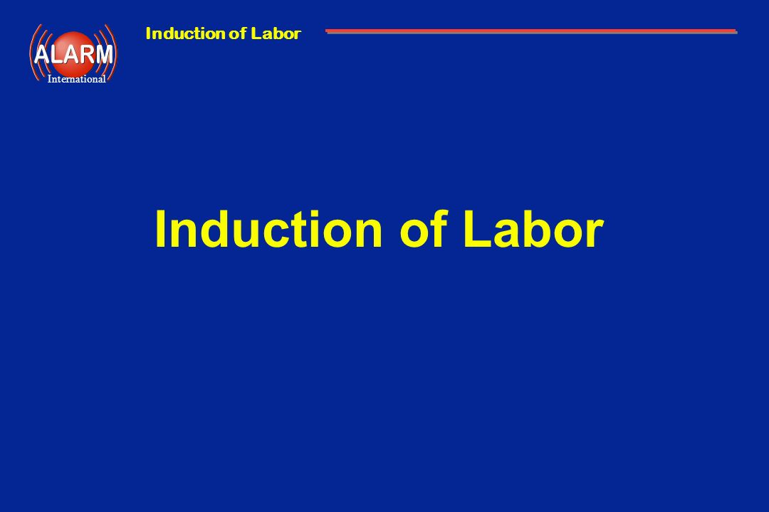 Induction of Labor International Induction of Labor