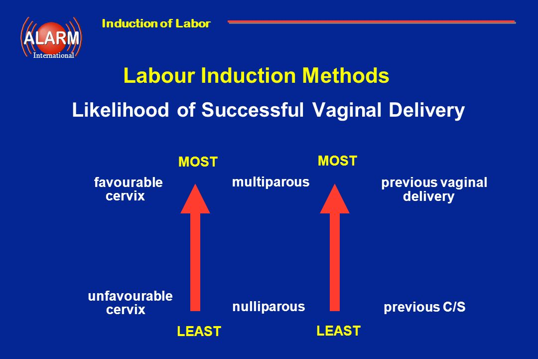 Induction of Labor International Labour Induction Methods Likelihood of Successful Vaginal Delivery LEAST MOST LEAST MOST favourable cervix unfavourab