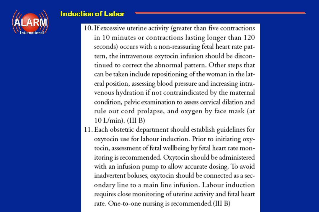 Induction of Labor International