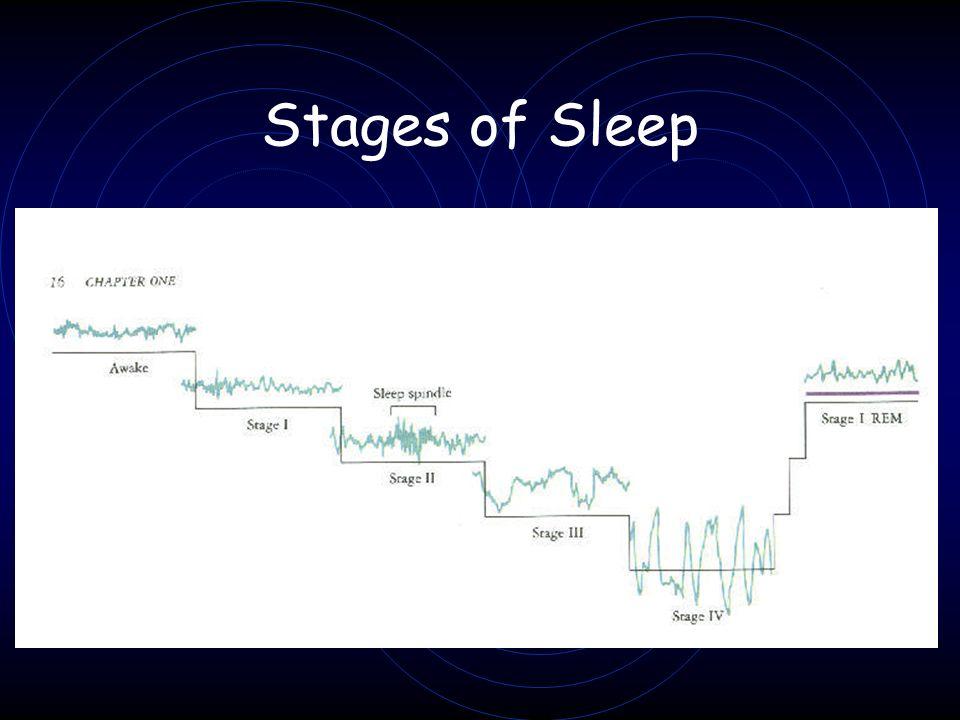 Sleep and Dreaming Activities Neuroscience for Kids http://faculty.washington.edu/chudler/chsleep.html Activity 1: Keep a SLOG (Sleep Log) Dream Journal Worksheet Sleep Journal Worksheet Activity 2: Be an REM Detective Activity 3: Drop off or Drift off.