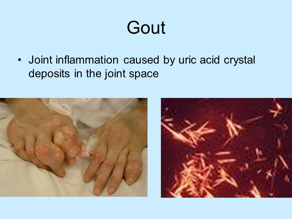 Gout Joint inflammation caused by uric acid crystal deposits in the joint space