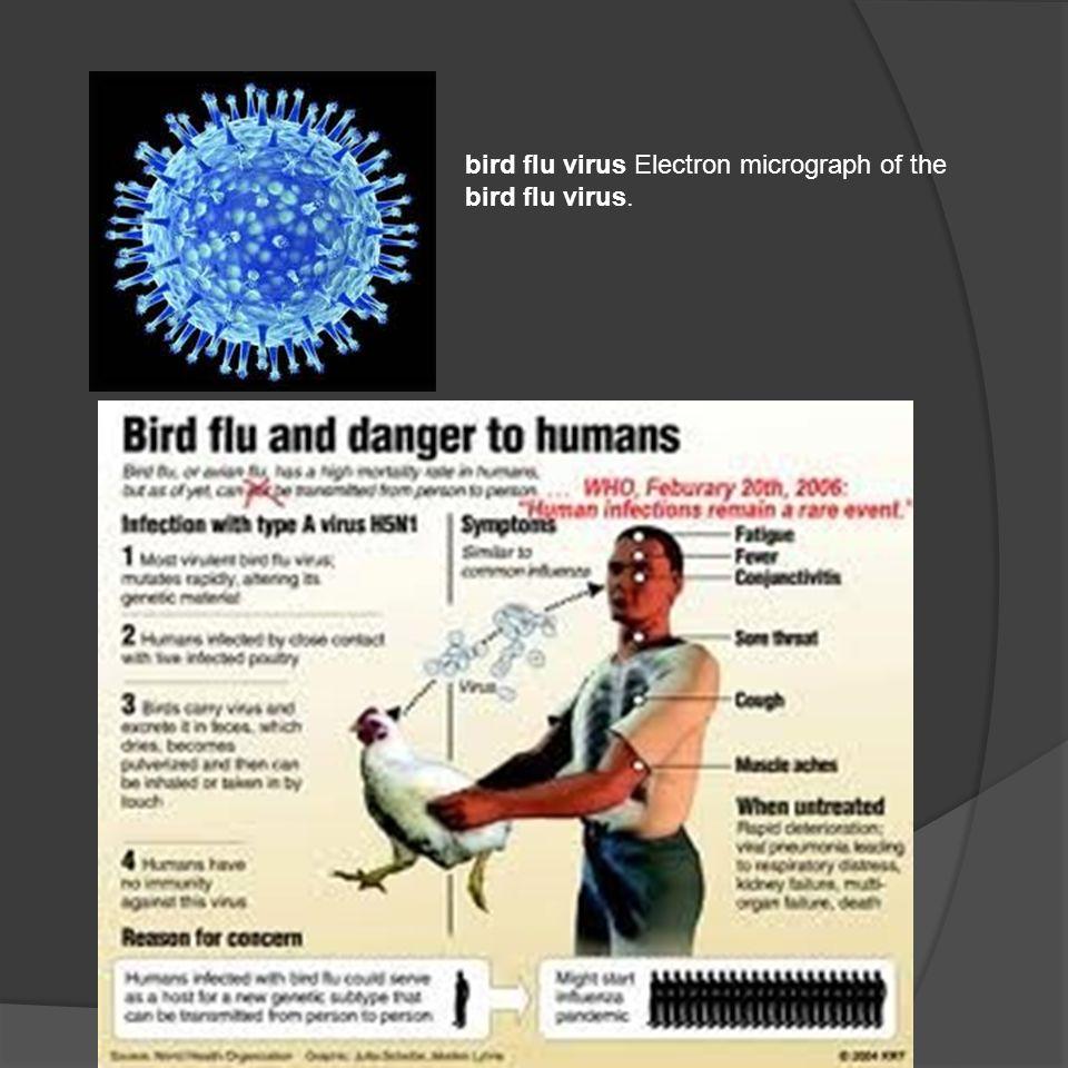bird flu virus Electron micrograph of the bird flu virus.