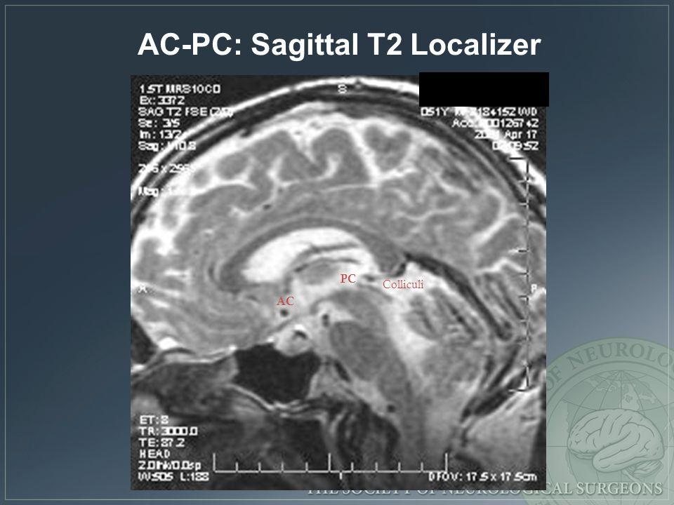 AC PC Colliculi AC-PC: Sagittal T2 Localizer