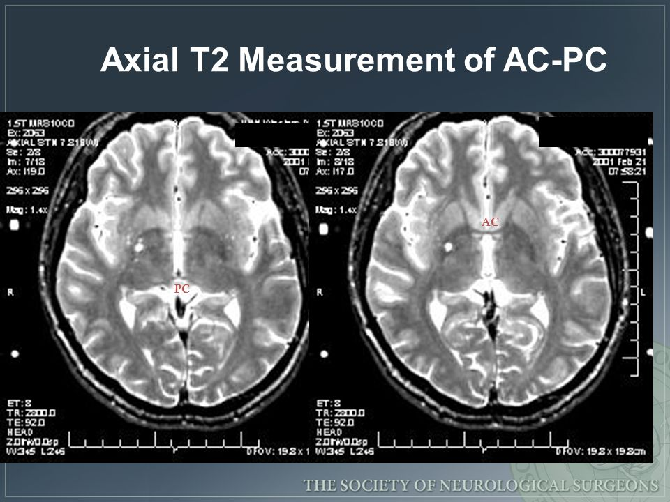 PC AC Axial T2 Measurement of AC-PC