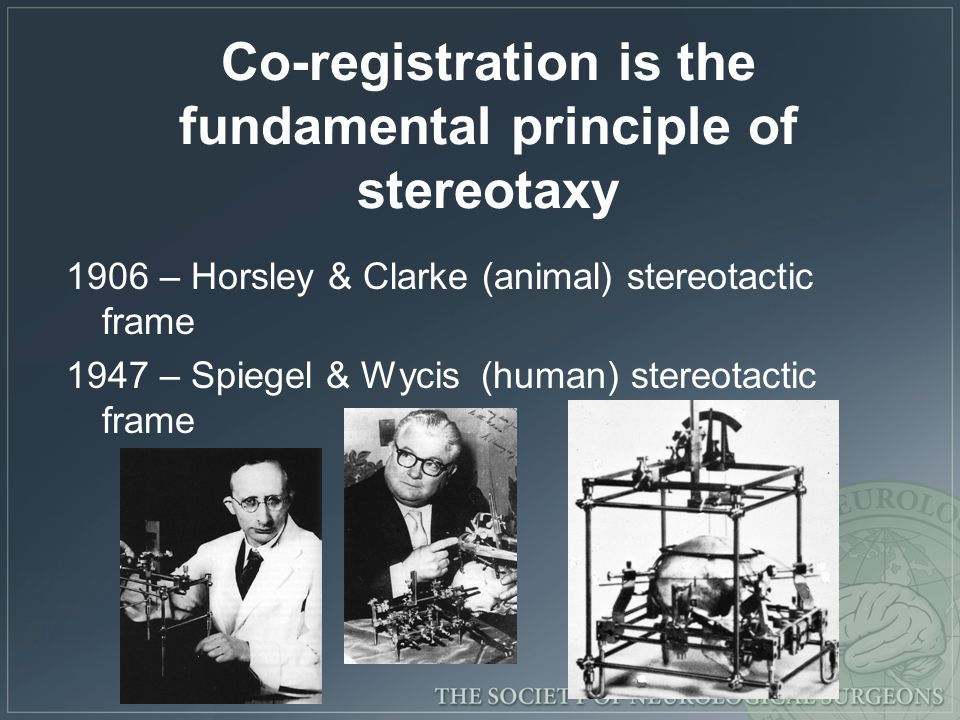 Co-registration is the fundamental principle of stereotaxy 1906 – Horsley & Clarke (animal) stereotactic frame 1947 – Spiegel & Wycis (human) stereotactic frame 1947-1980 – Proliferation of stereotactic frames