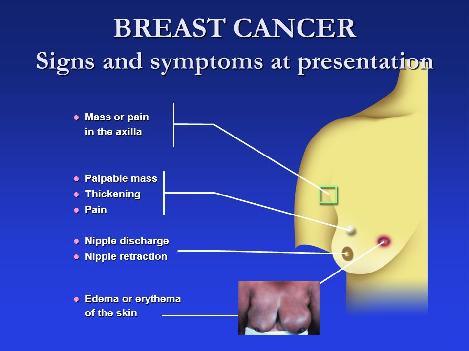 4 BREAST CANCER Signs and symptoms at presentation Mass or pain in the axilla Mass or pain in the axilla Palpable mass Palpable mass Thickening Thicke