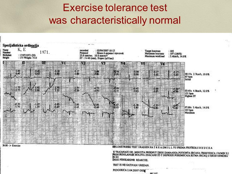Exercise tolerance test was characteristically normal slika ergometrije