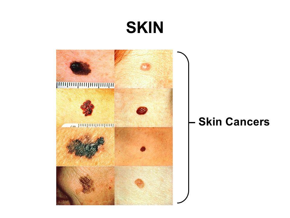 SKIN Skin Cancers