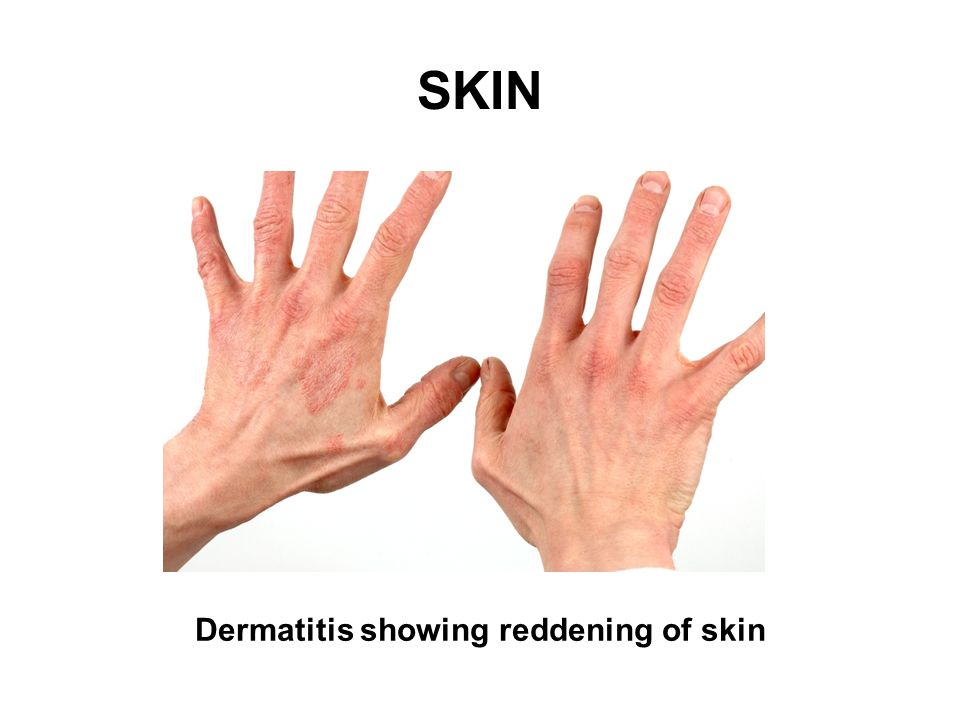 SKIN Dermatitis showing crusting and thickening of skin