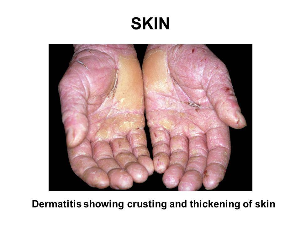 SKIN Dermatitis showing crusting and thickening of skin