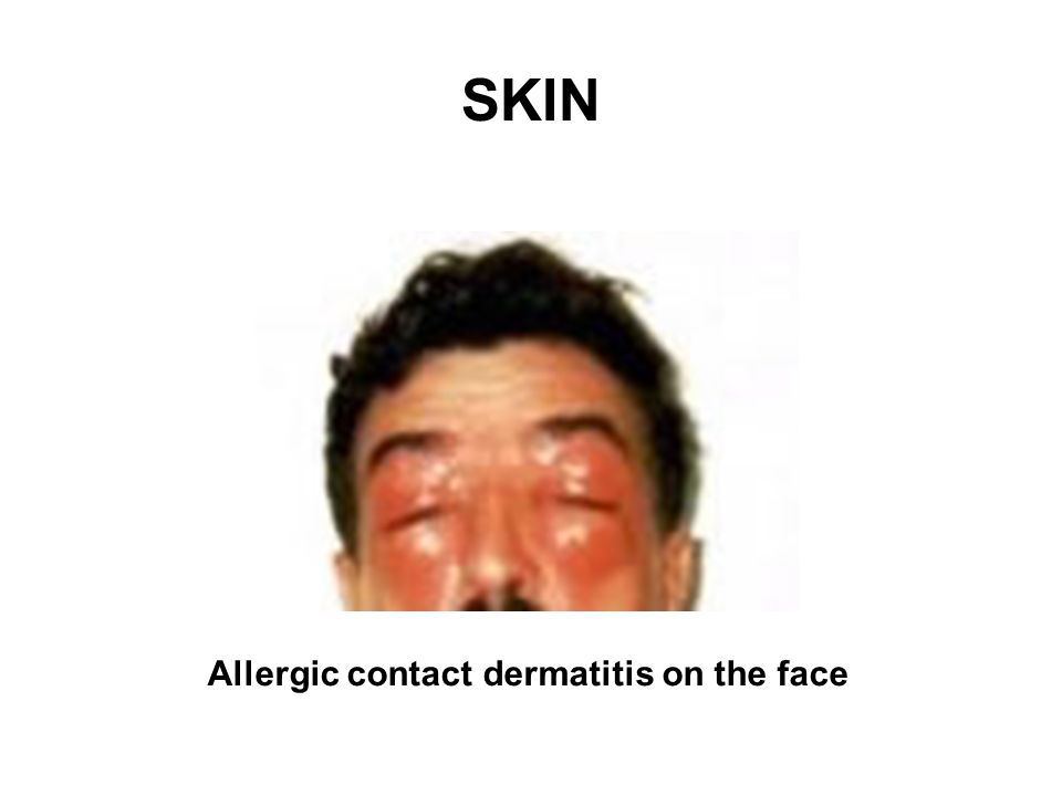 SKIN Allergic contact dermatitis on the face