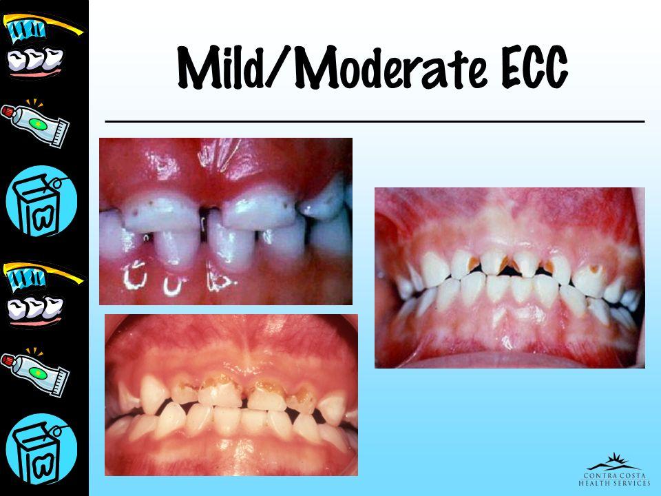 Mild/Moderate ECC