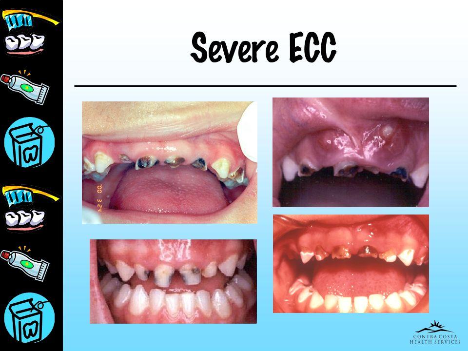 Severe ECC