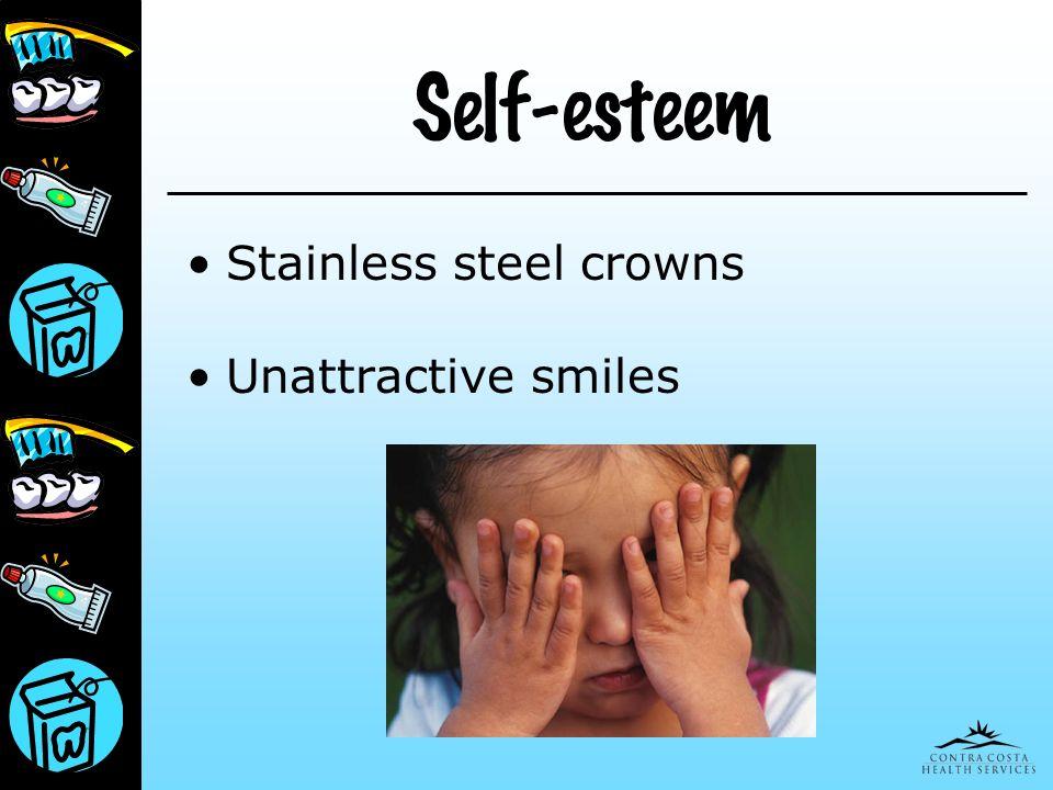 Self-esteem Stainless steel crowns Unattractive smiles