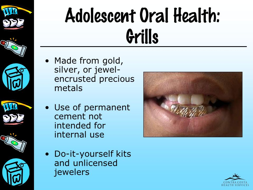 Adolescent Oral Health: Grills Made from gold, silver, or jewel- encrusted precious metals Use of permanent cement not intended for internal use Do-it