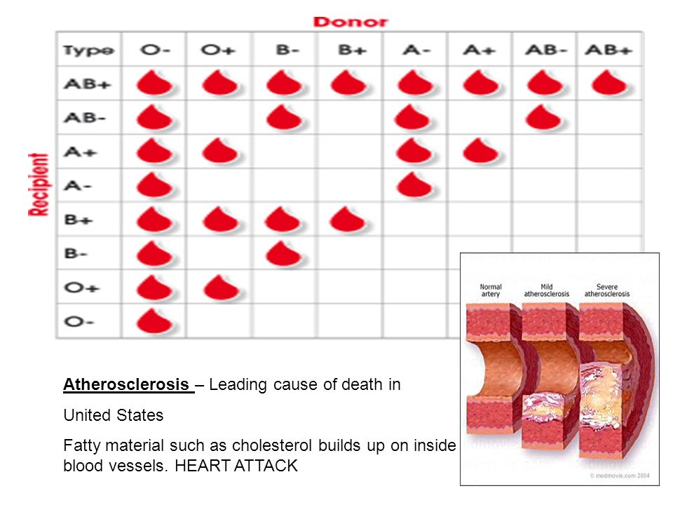 Atherosclerosis – Leading cause of death in United States Fatty material such as cholesterol builds up on inside of blood vessels. HEART ATTACK