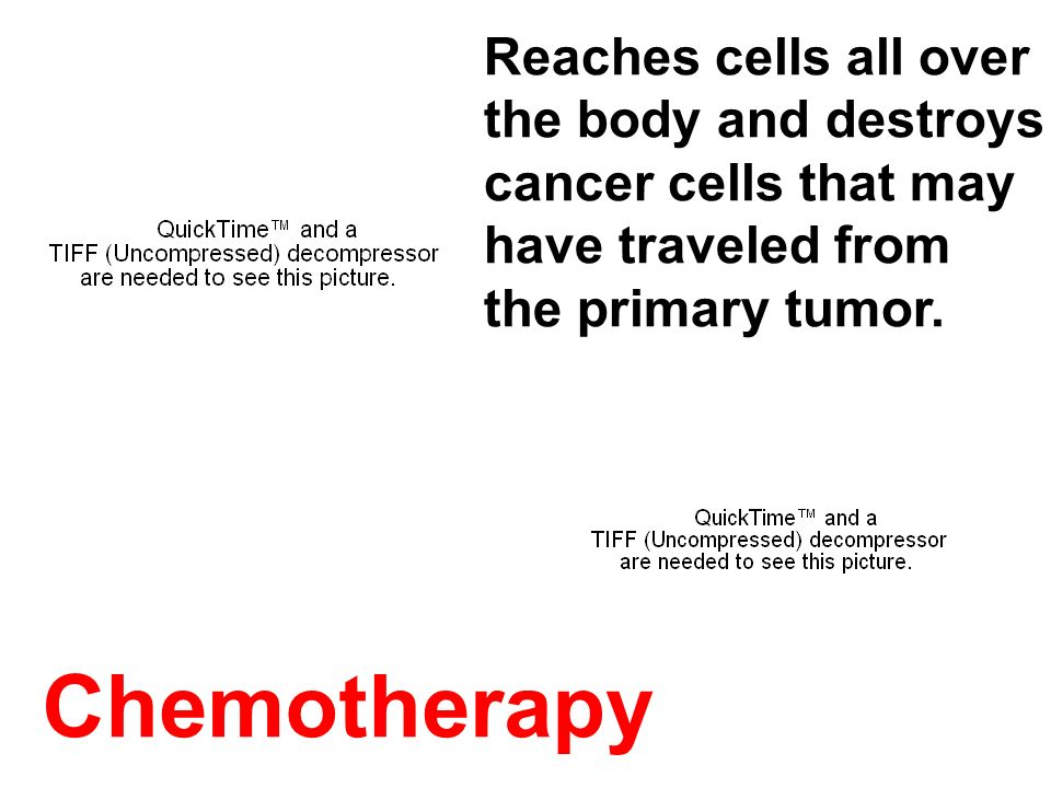 Chemotherapy Reaches cells all over the body and destroys cancer cells that may have traveled from the primary tumor.