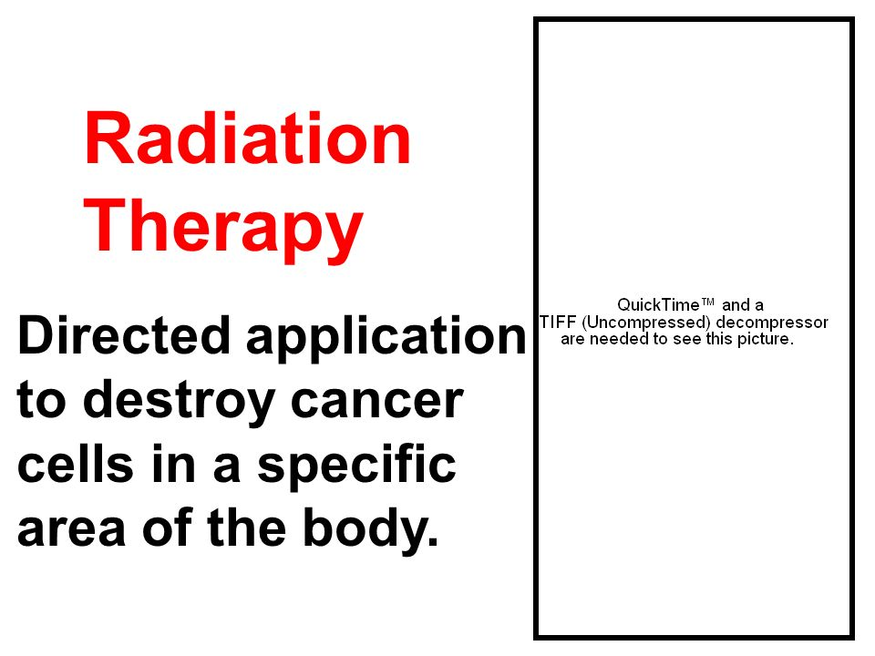 Radiation Therapy Directed application to destroy cancer cells in a specific area of the body.