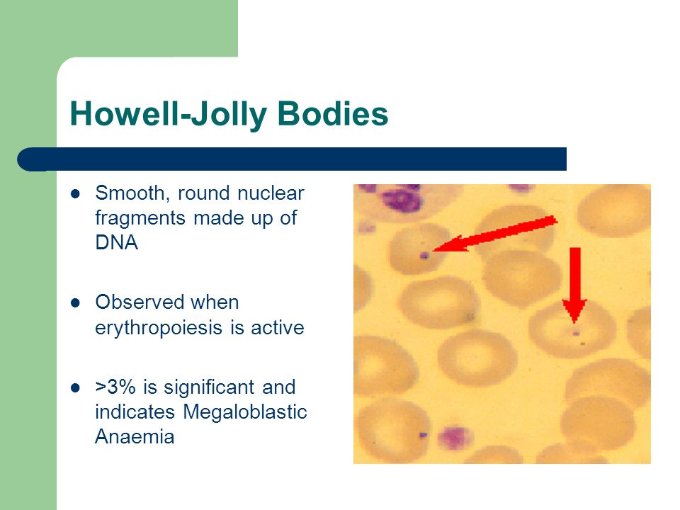 Howell-Jolly Bodies Smooth, round nuclear fragments made up of DNA Observed when erythropoiesis is active >3% is significant and indicates Megaloblast