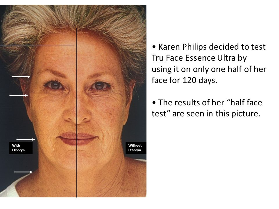 With EthocynWithout Ethocyn Karen Philips decided to test Tru Face Essence Ultra by using it on only one half of her face for 120 days. The results of