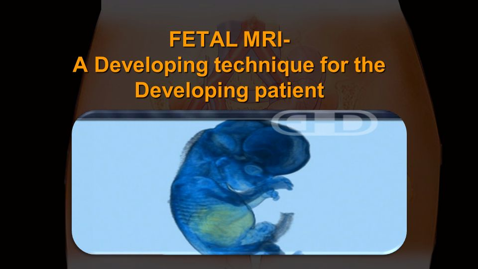 FETAL MRI- A Developing technique for the Developing patient