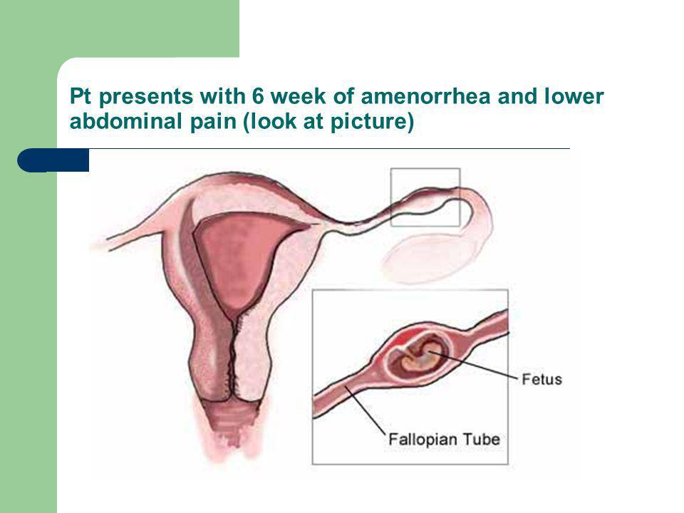 Pt presents with 6 week of amenorrhea and lower abdominal pain (look at picture)