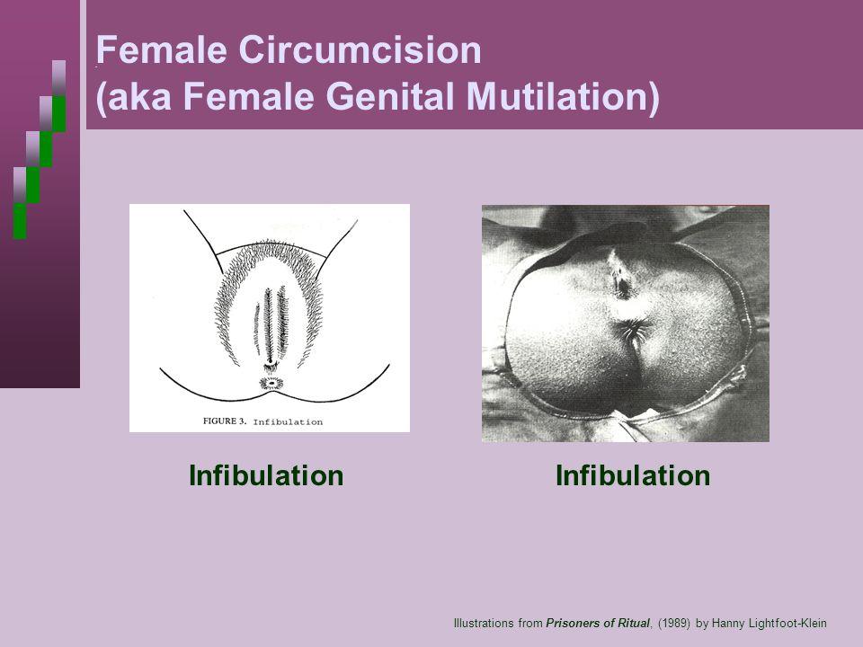 . Illustrations from Prisoners of Ritual, (1989) by Hanny Lightfoot-Klein Female Circumcision (aka Female Genital Mutilation) Infibulation
