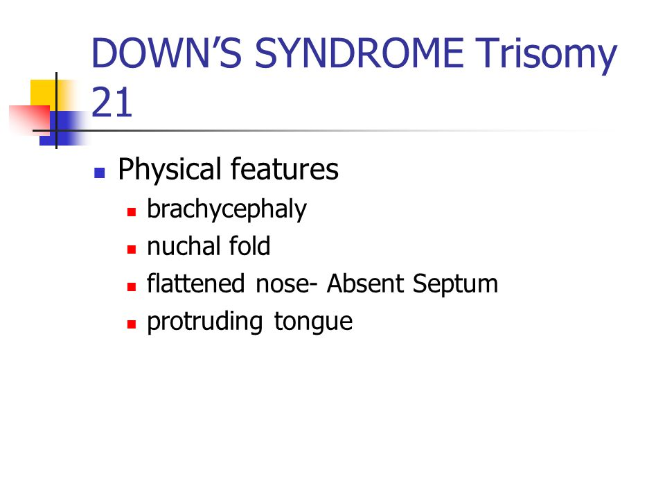 DOWNS SYNDROME Trisomy 21 Physical features brachycephaly nuchal fold flattened nose- Absent Septum protruding tongue