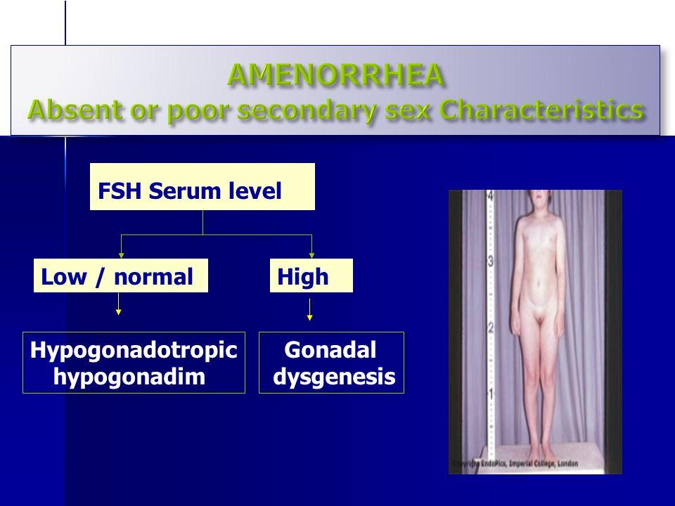 Ovarian dysgenesis