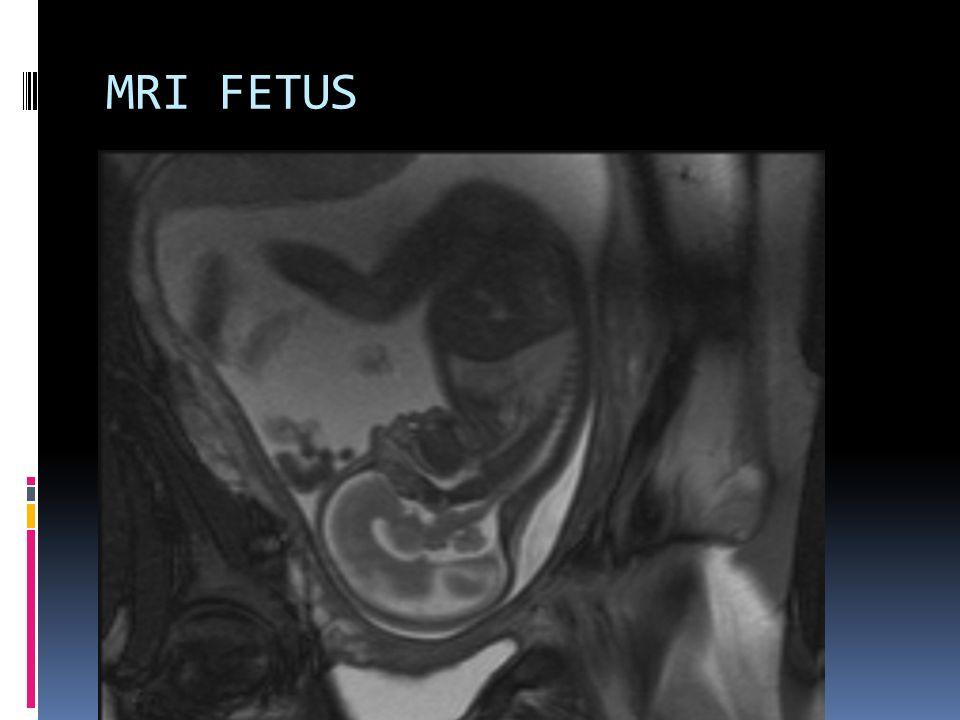 MRI FETUS