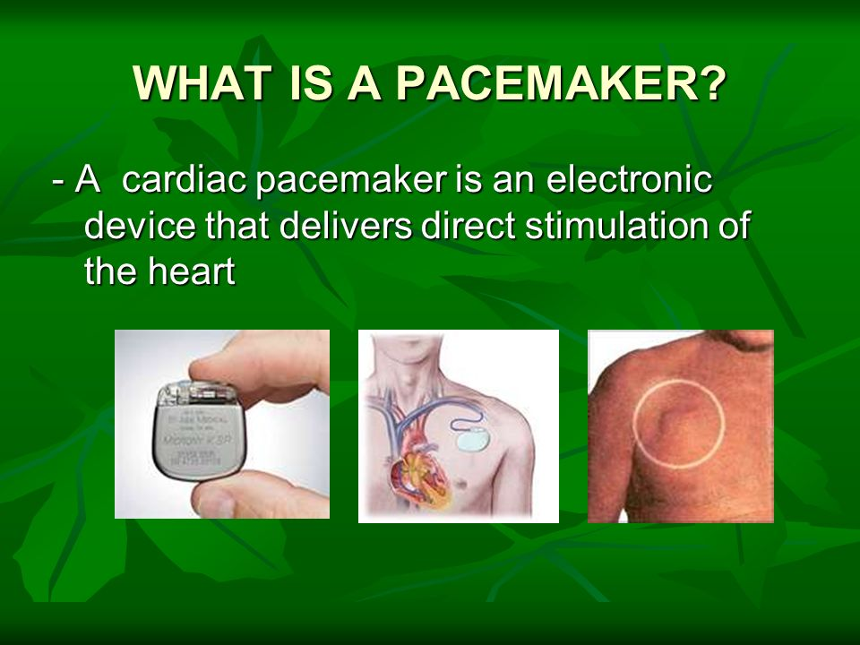 WHAT IS A PACEMAKER? - A cardiac pacemaker is an electronic device that delivers direct stimulation of the heart