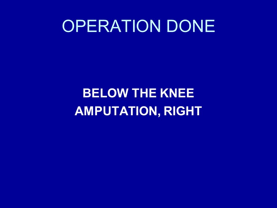 OPERATION DONE BELOW THE KNEE AMPUTATION, RIGHT