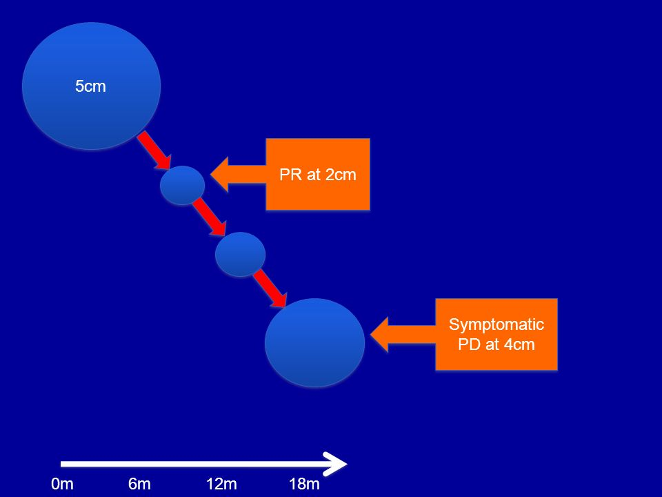 5cm PR at 2cm Symptomatic PD at 4cm 6m0m12m18m