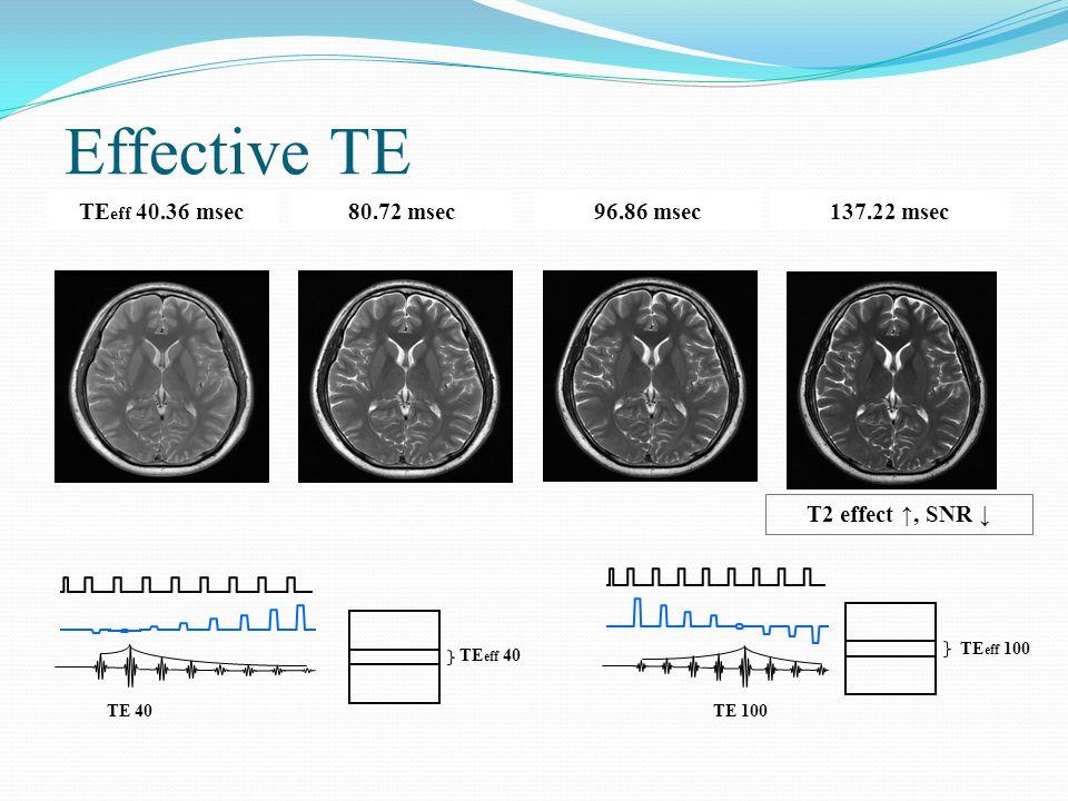 Effective TE TE eff 40.36 msec80.72 msec96.86 msec137.22 msec T2 effect, SNR TE 40TE 100 TE eff 40 TE eff 100