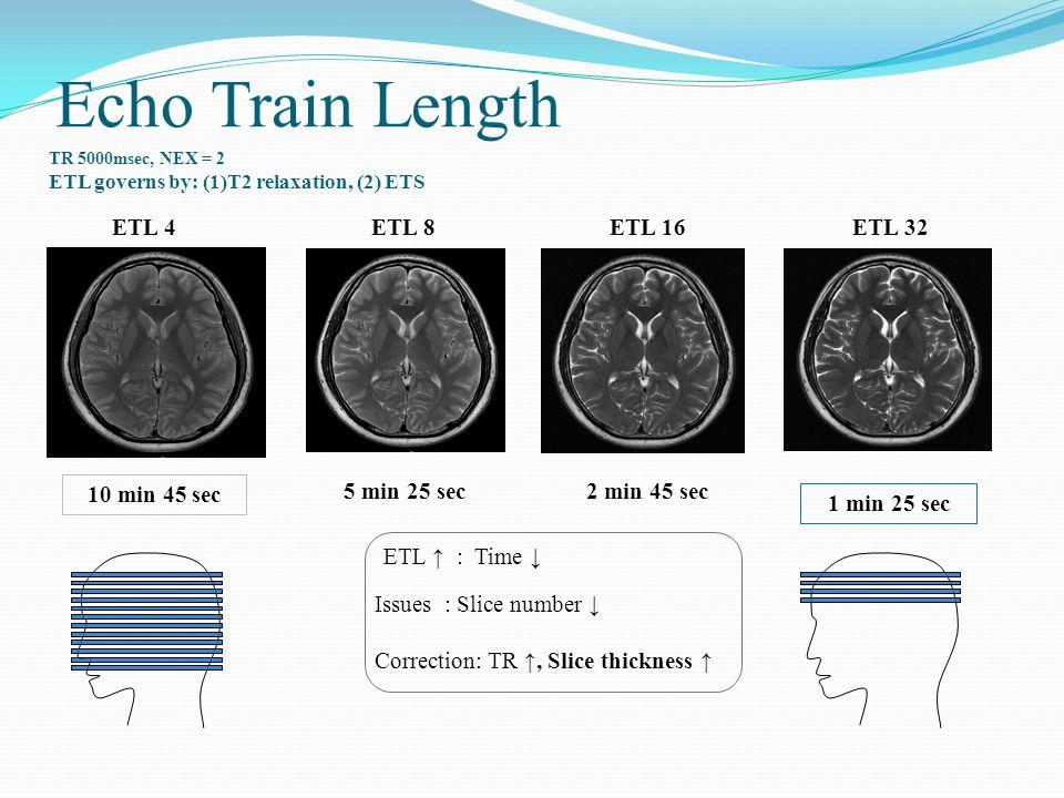 Echo Train Length ETL 4ETL 8ETL 16ETL 32 TR 5000msec, NEX = 2 ETL governs by: (1)T2 relaxation, (2) ETS 10 min 45 sec 5 min 25 sec2 min 45 sec 1 min 2