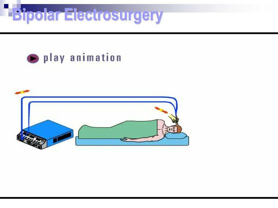 Bipolar Electrosurgery