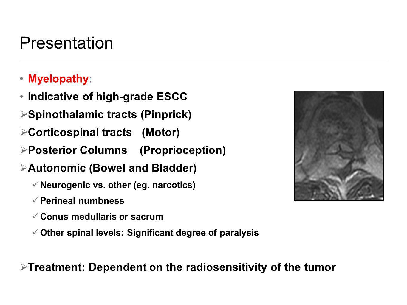 Presentation Myelopathy: Indicative of high-grade ESCC Spinothalamic tracts (Pinprick) Corticospinal tracts (Motor) Posterior Columns (Proprioception)